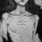 Что такое анорексия и булимия?